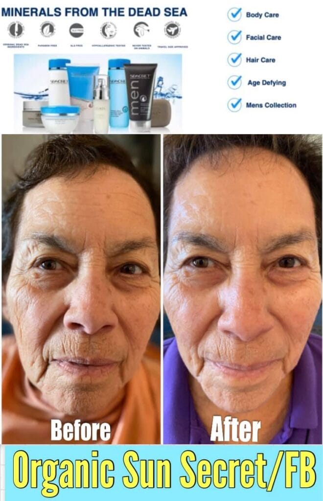 BEFORE AND AFTER PICTURE OF RESULTS FROM SEACRET SKIN CARE PRODUCT RECOVER DAY MASQUE. MADE WITH MINERALS FROM THE DEAD SEA AND THE RESULTS ARE AMAZING.