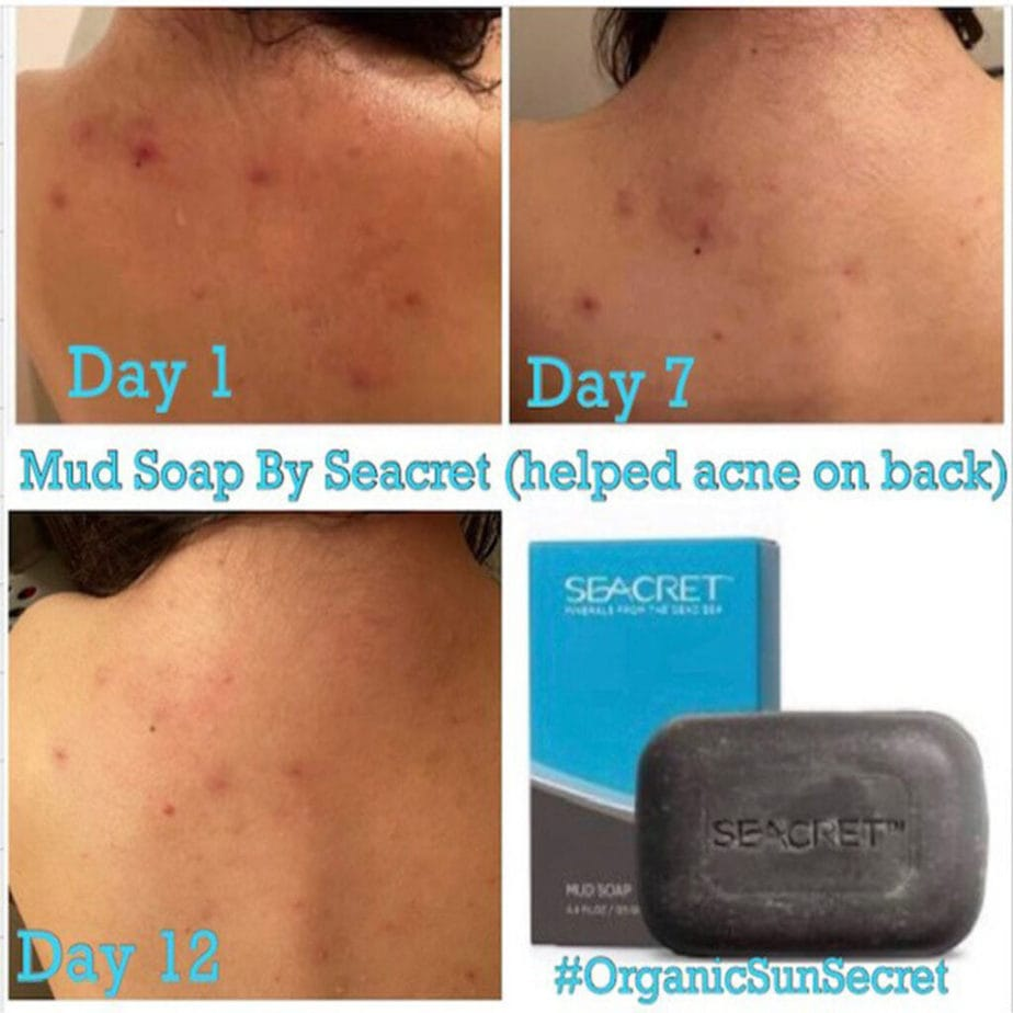 PICTURE TESTIMONIAL SHOWING DAY 1 TO DAY 12 DIFFERENCE CLEARING UP SKIN FROM USING SEACRET MUD BAR SOAP MADE WITH MINERALS FROM THE DEAD SEA.