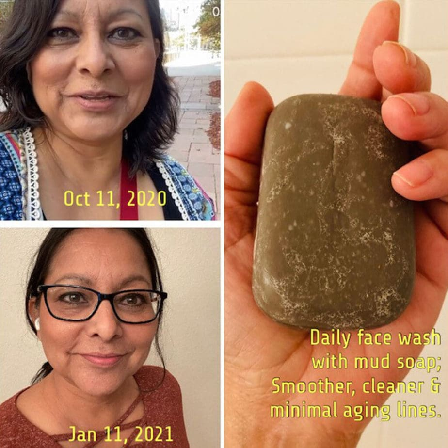 SEACRET MUD BAR SOAP PICTURE TESTIMONIAL BEFORE AND AFTER PICTURES WITH PICTURE OF DEAD SEA MINERAL MUD BAR SOAP FROM SEACRET LIFE BY SEACRET SKINCARE & SUPPLEMENTS